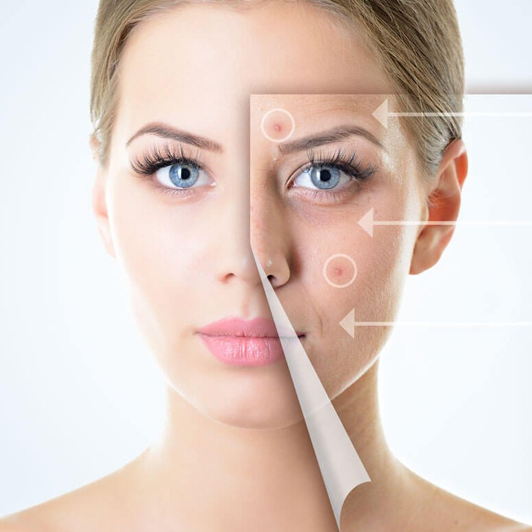 Acne-Treatment-Market